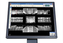 Dental Xrays Fairway KS